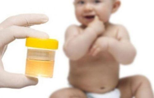 Что означает наличие аморфных фосфатов в моче?