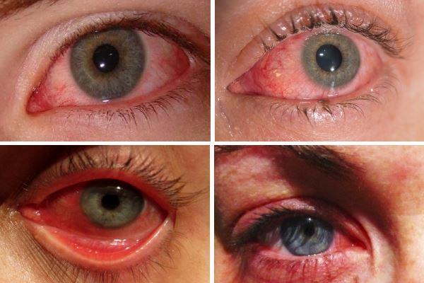 Аллергический конъюнктивит визуально