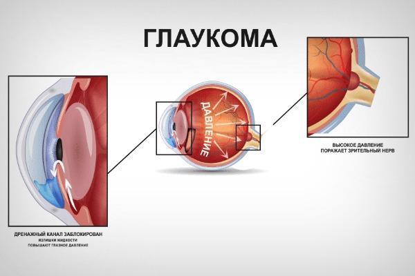 Повышение внутриглазного давления при глаукоме