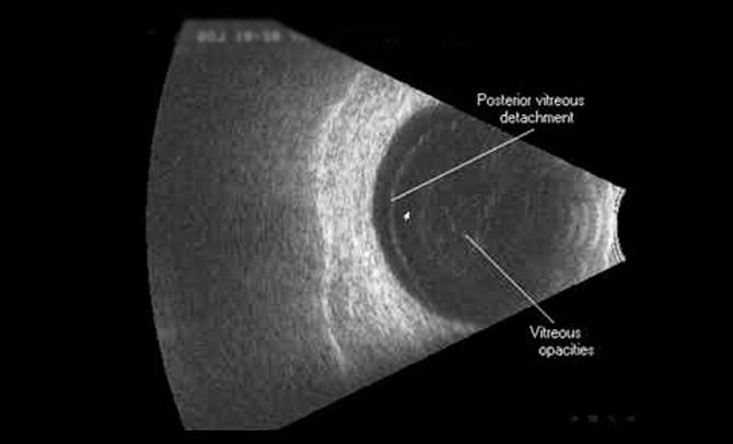 Ультразвуковое исследование глаза