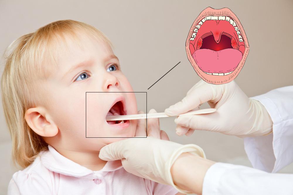 Ларинготрахеит у детей симптомы и лечение