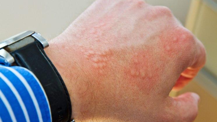 аллергия на латексный презерватив на руках
