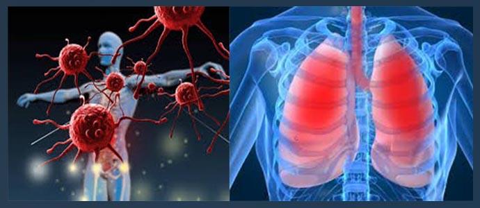 Иммунодефицит, заболевания дыхательной системы