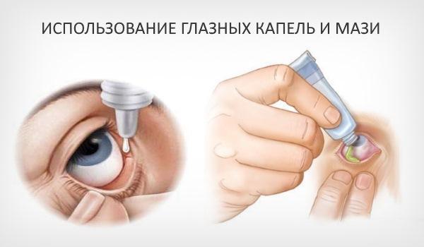 Использование капель и мази