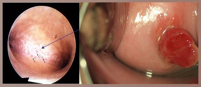 Эндометриоз, полипы на слизистой миометрия