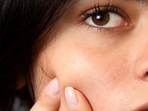 Как выдавить жировик на лице в домашних условиях