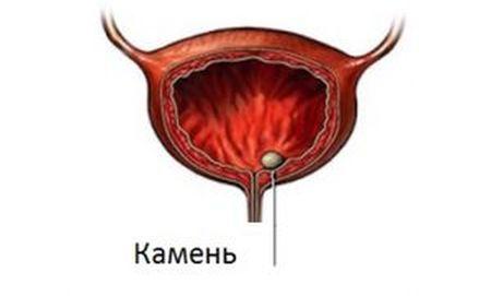 Признаки и методы лечения мочекаменной болезни у мужчины