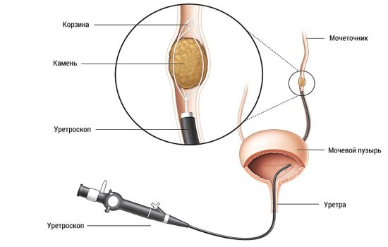 Какие симптомы камней в мочевом пузыре и как их лечить?