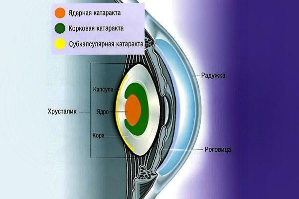 Зрительный аппарат при ядерной катаракте