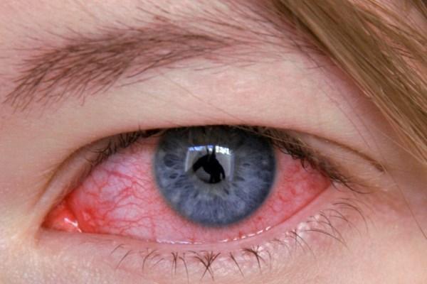 Воспалительный процесс органа зрения