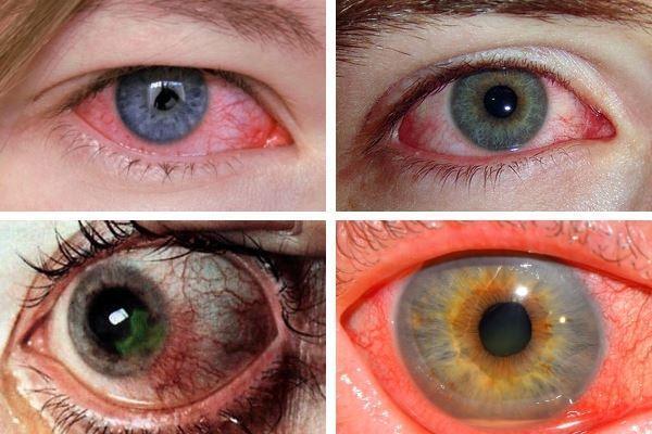 Кератиты глаз на фото