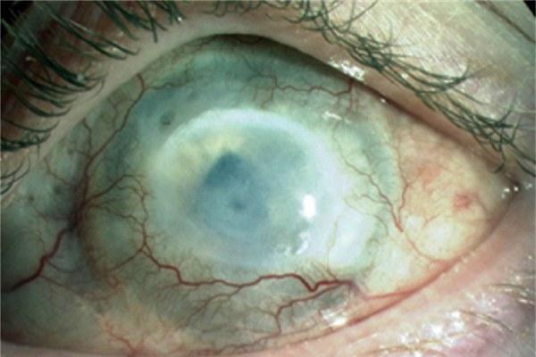 Ожог глаза кислотой