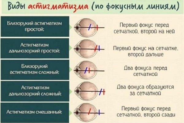 Виды по фокусным линиям
