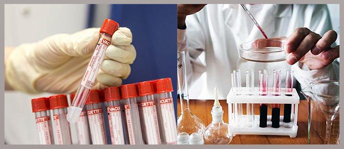Клинические тесты на онкомаркеры, биохимические анализы крови