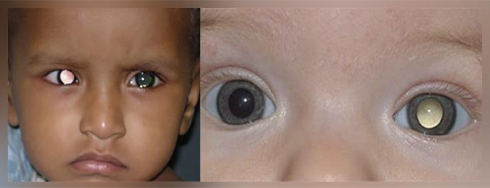 «Кошачий глаз», или лейкокория