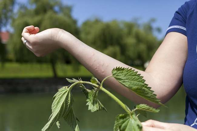 Аллергия на крапиву у взрослых и детей