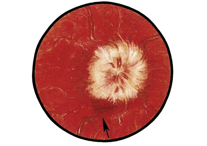 Кровоизлияние в зрительный диск