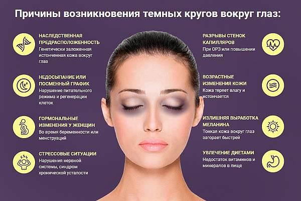 Причины темных кругов вокруг глаз
