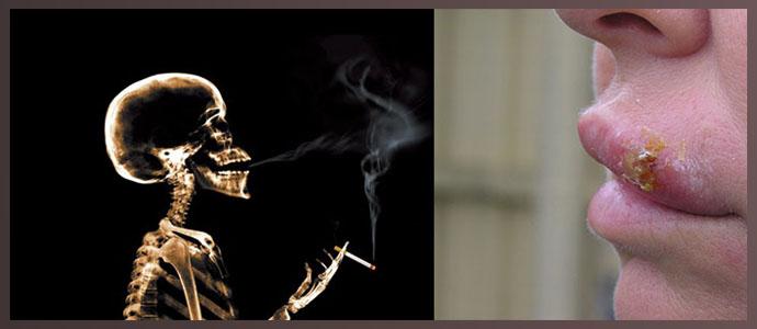 Курение, герпес