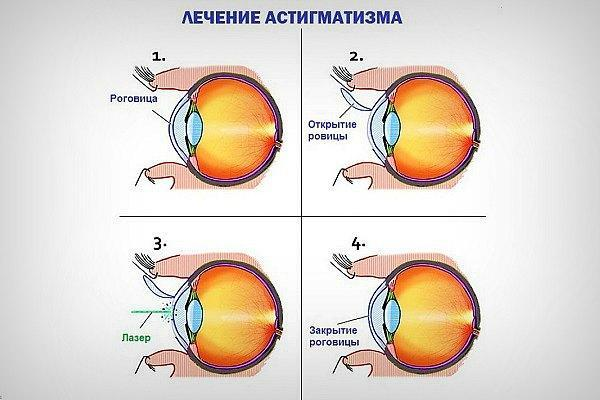 Лечение астигматизма