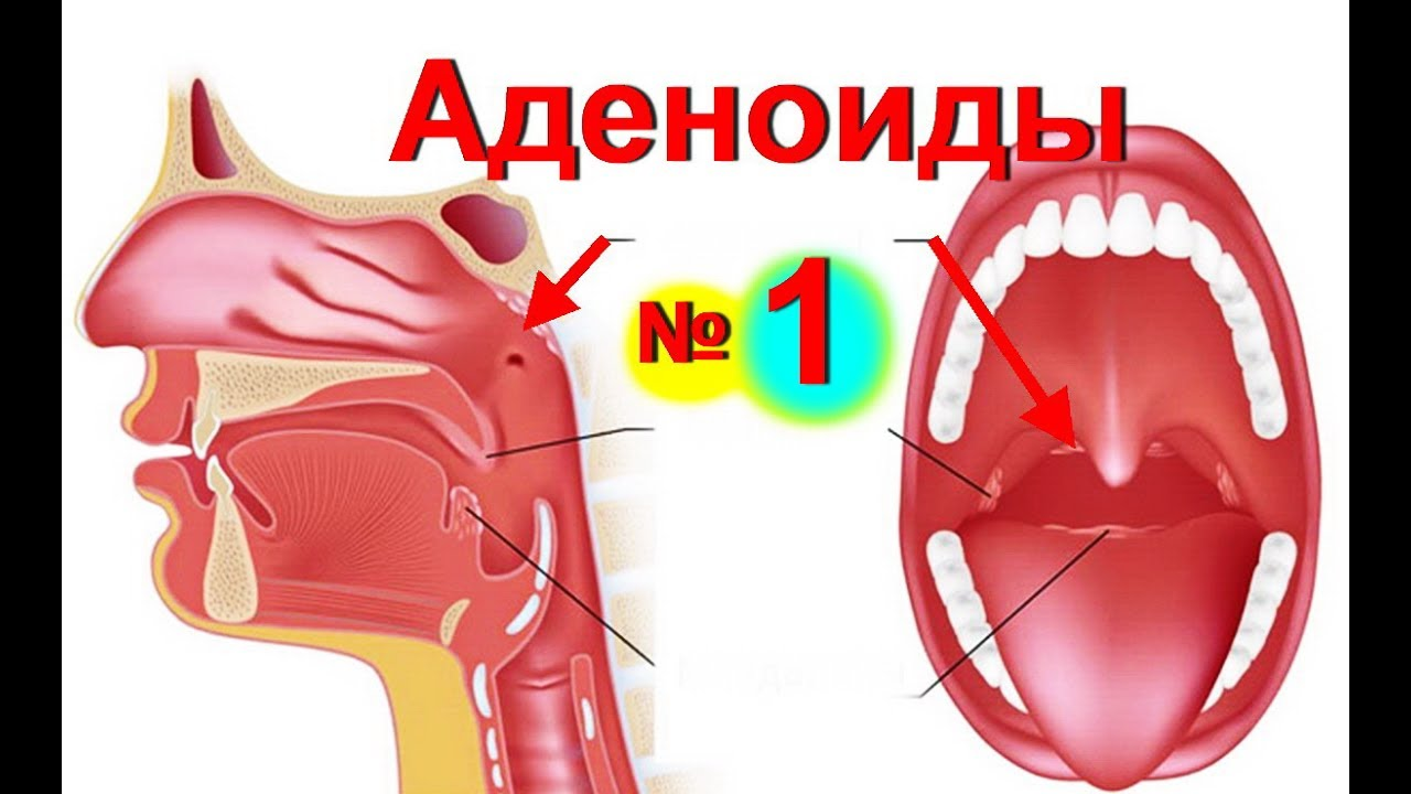 Аденоиды у ребенка 1 степени