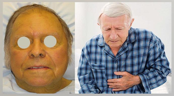 Механическая желтуха, боли в эпигастрии