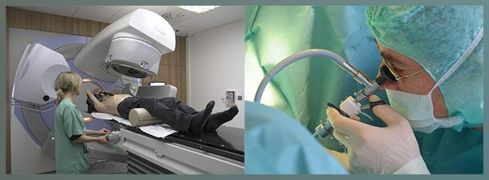 Лучевая терапия, хирургия
