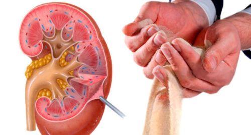 Что означает наличие микролитов в обоих почках?