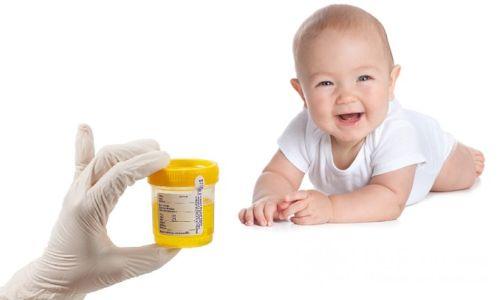 Что означает повышение нитритов в моче?