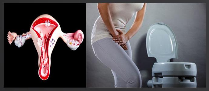 Обильные менструации, проблемы с мочеиспусканием
