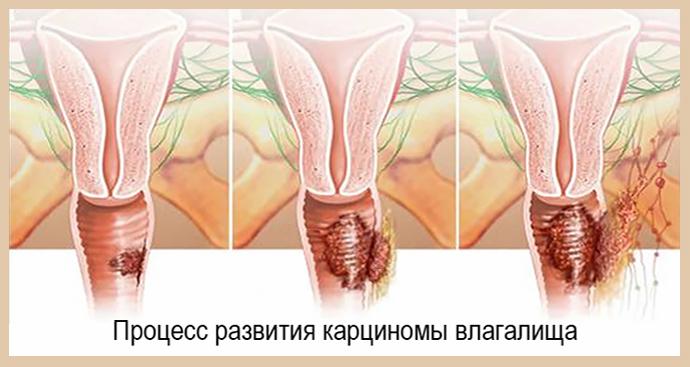 Рак влагалища (вагины)