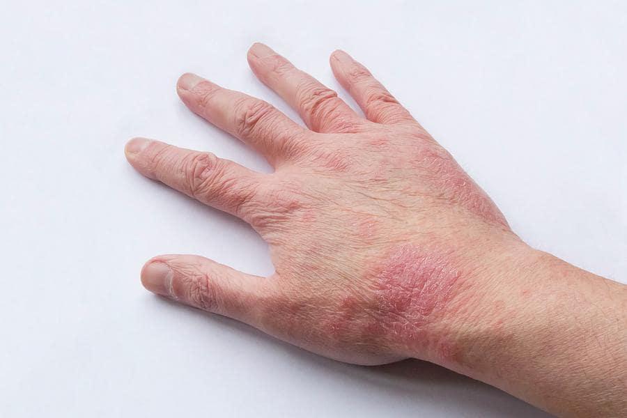 Аллергия на коже у взрослых и детей