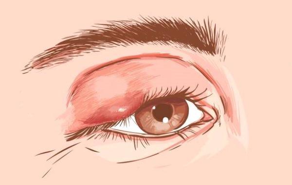 Какие признаки и как лечить воспаление мочевого пузыря у мужчин?