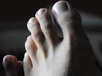 Как развивается остеома стопы