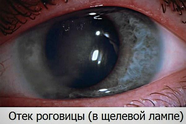 Пленка на роговице глаза и отек