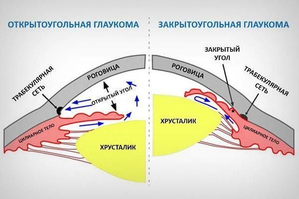 Закрытоугольная и открытоугольная глаукома