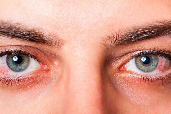 Повышенная нагрузка на глаза