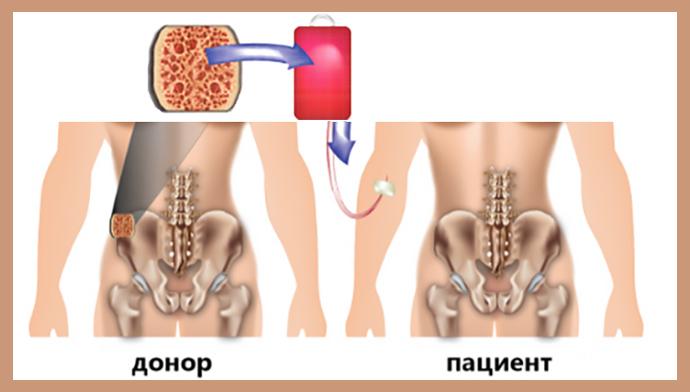 Рак костного мозга (злокачественная опухоль)
