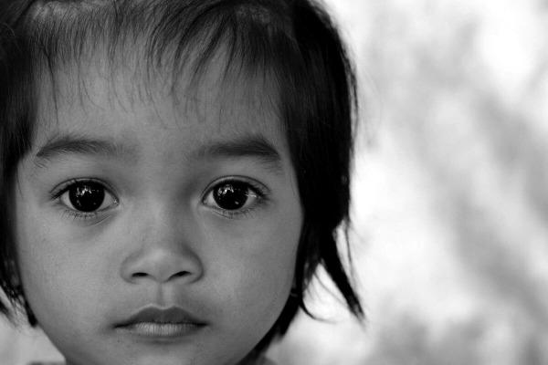 Аниридия у ребенка
