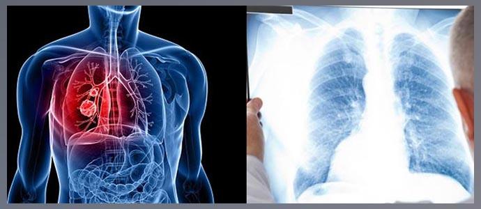 Плоскоклеточный и железистый рак панкоста