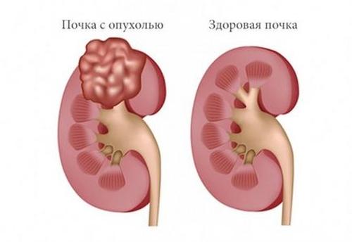 Какие первые признаки опухоли почки, и как её лечить?