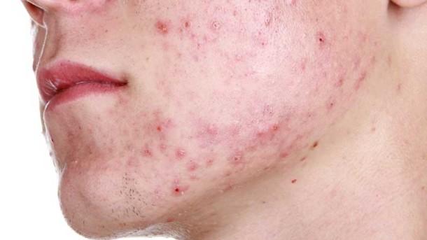 Прыщи при аллергии