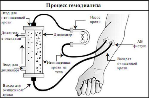 Что такое аппарат искусственной почки, какой он бывает?