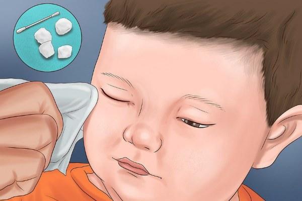 Промывание глаз при конъюнктивите у ребенка