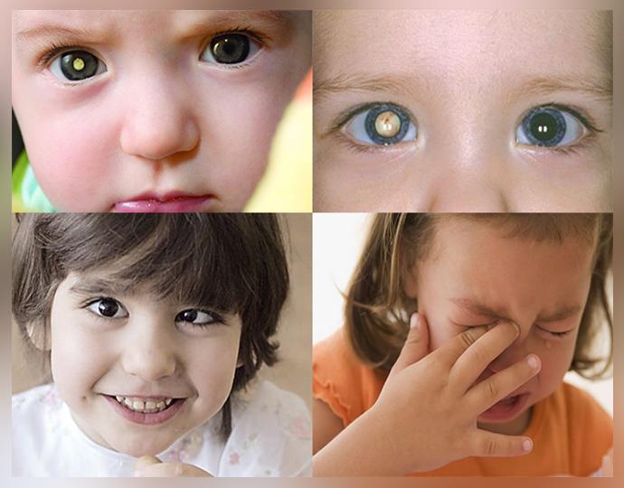 Проявление ретинобластомы