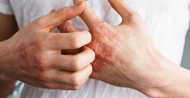 красные трещины на руках