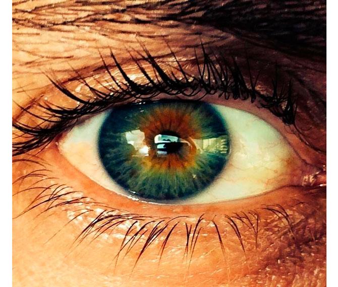 Глаза разного цвета как называется патология