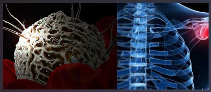 Рак костного мозга