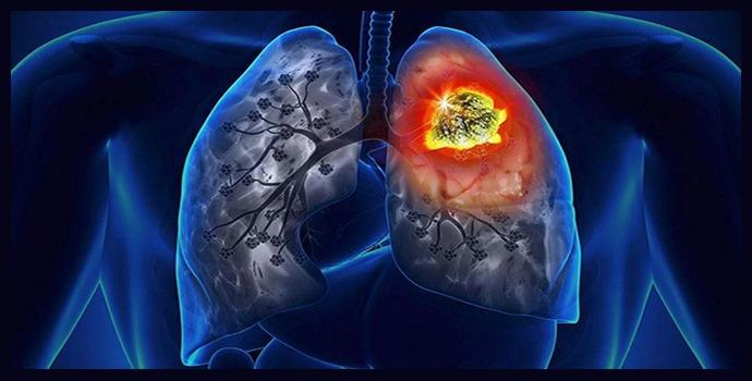 Рак легких 3 стадия