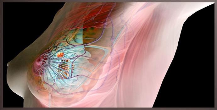 Рак молочной железы 3 степени